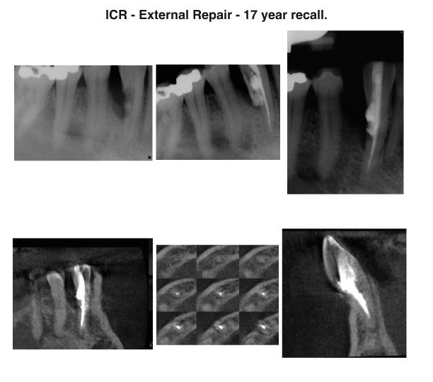 External repair case #1